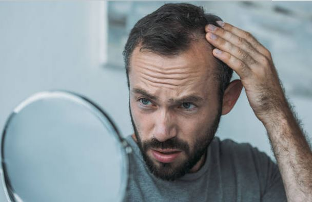 What is the Best Hair Treatment for Male Hair Loss
