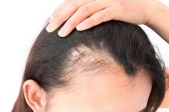Can COVID-19 cause hair loss
