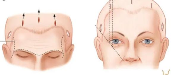 What is forehead lift